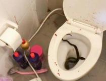 Jovem é picado por píton ao se sentar em vaso sanitário