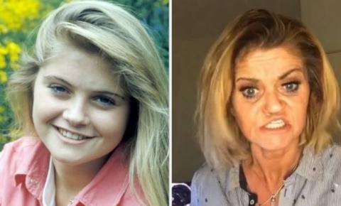 Atriz passa por cirurgia após ter rosto corroído por abuso de cocaína