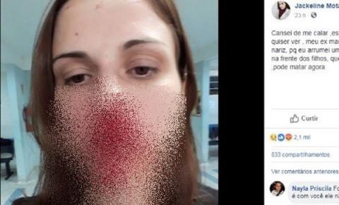 'Cansei de me calar': Mulher publica foto para denunciar agressão do ex-marido