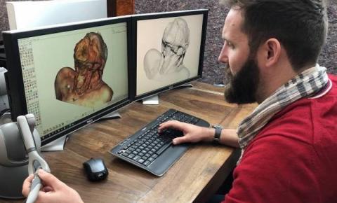 Cadáver virtual ajuda universidades com escassez médica de corpos