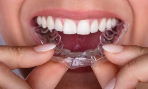 Tecnologia digital vira tendência no mercado odontológico